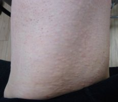 Inflamed hair follicles from laser treatment